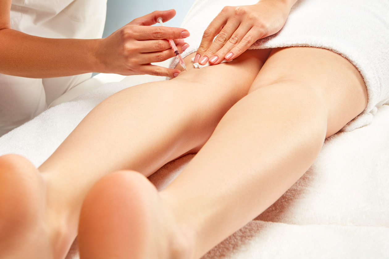Sclerotherapy / Microsclerotherapy