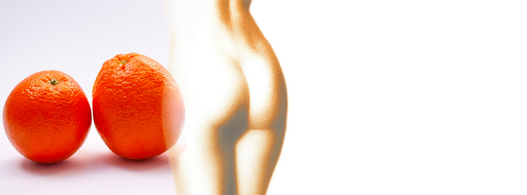"""Accent"" Your Assets – Banish Cellulite with Combined Ultrasound and RF"